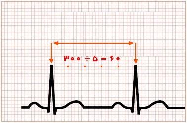 خواندن و تفسیر نوار قلب - روش مربعهای بزرگ