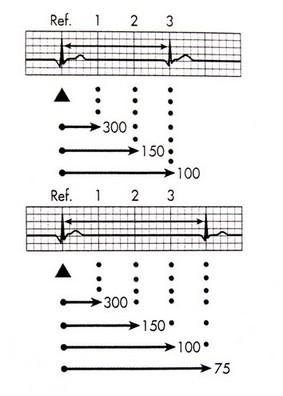 خواندن و تفسیر نوار قلب - روش ترتیبی (sequential)